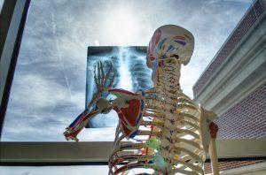הערכת טכנולוגיה רפואית- האם שימוש ברובוטים מעלה את אחוזי הרשלנות