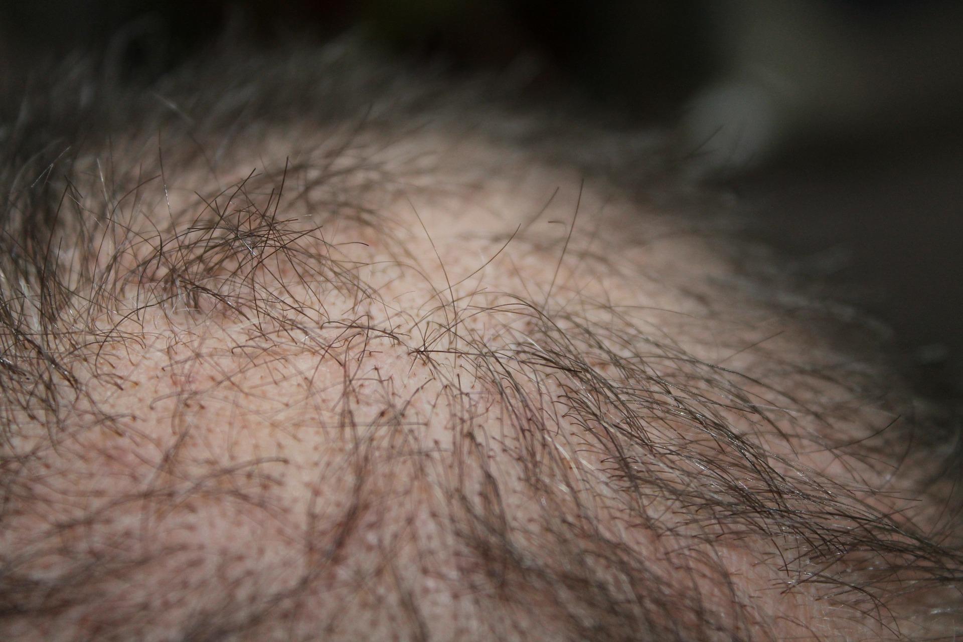 פטנטים טכנולוגיים להתמודדות עם נשירת שיער